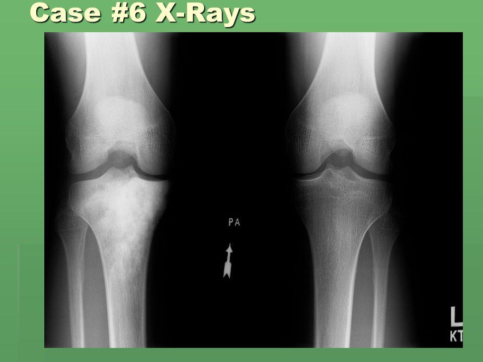 Case #6 X-Rays