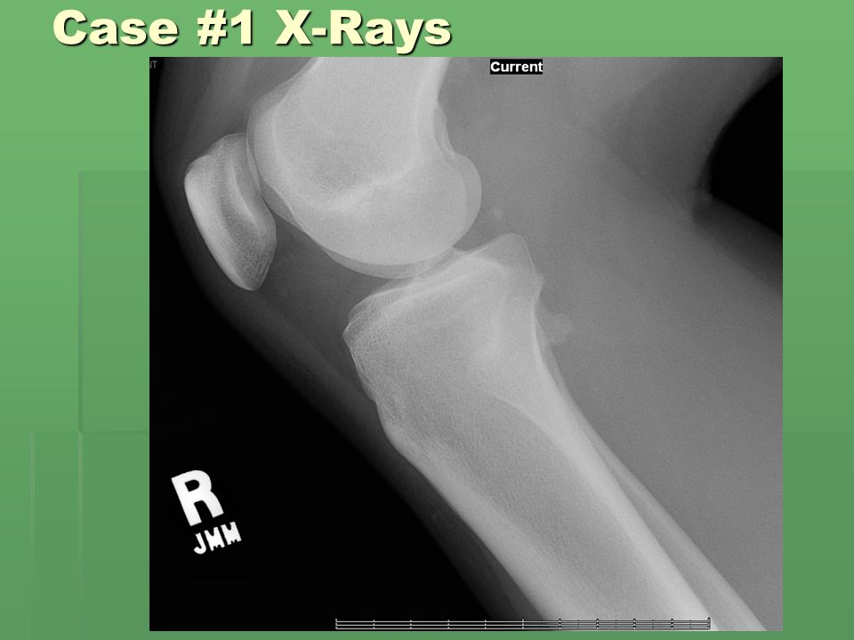 Case #6 History  17-year-old male with complaint of right knee pain which had been present for the past 4-5 months.