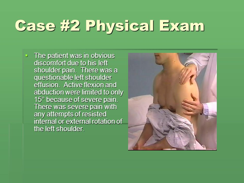 Case #2 Physical Exam  The patient was in obvious discomfort due to his left shoulder pain. There was a questionable left shoulder effusion. Active f
