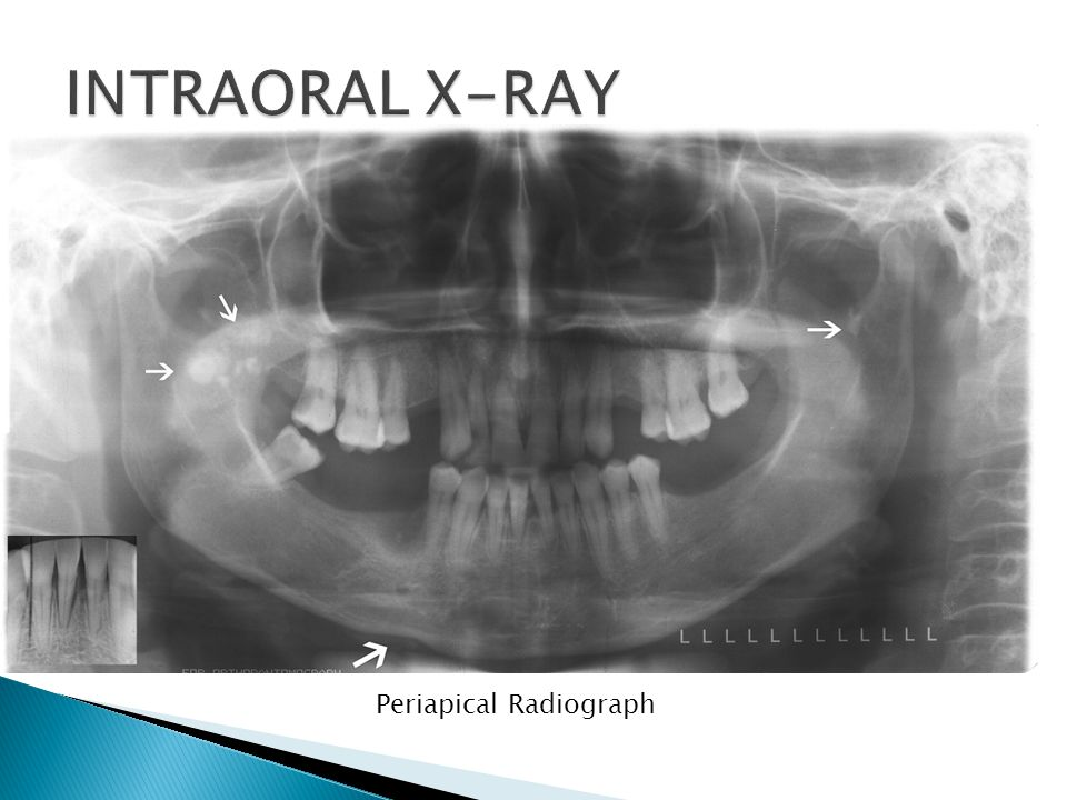 Periapical Radiograph