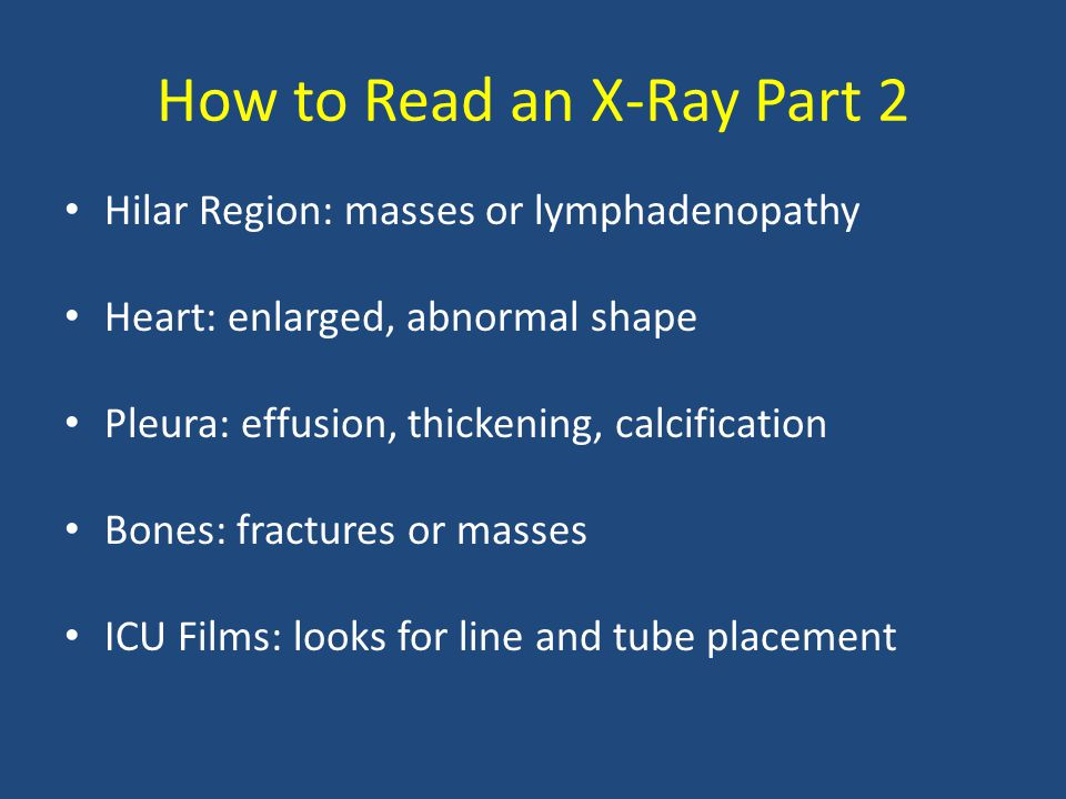 How to Read an X-Ray Part 2 Hilar Region: masses or lymphadenopathy Heart: enlarged, abnormal shape Pleura: effusion, thickening, calcification Bones: