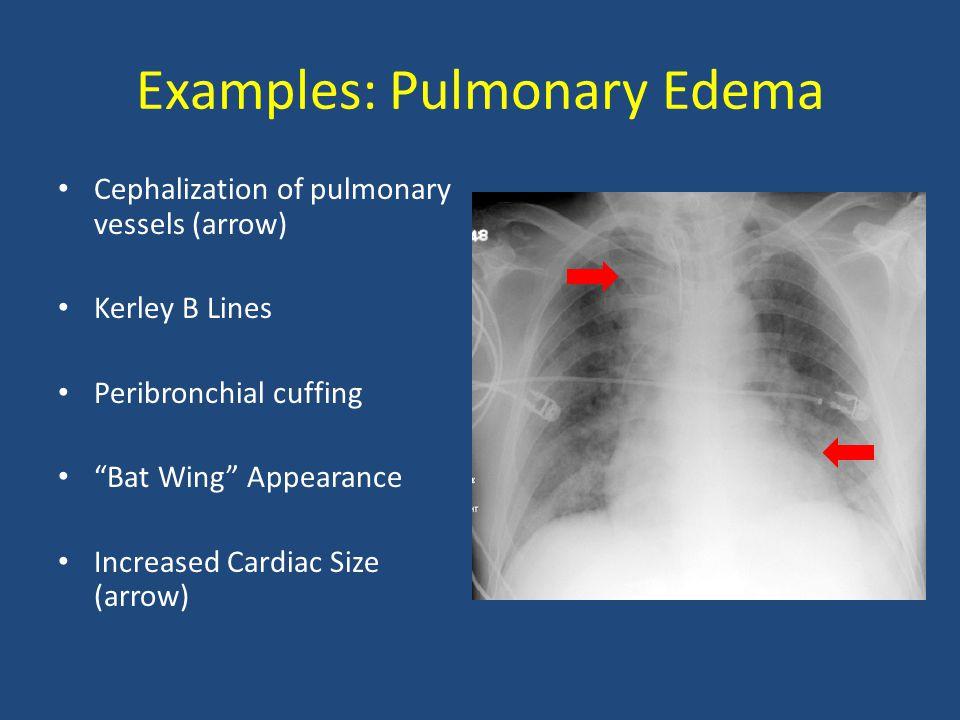"Examples: Pulmonary Edema Cephalization of pulmonary vessels (arrow) Kerley B Lines Peribronchial cuffing ""Bat Wing"" Appearance Increased Cardiac Size"