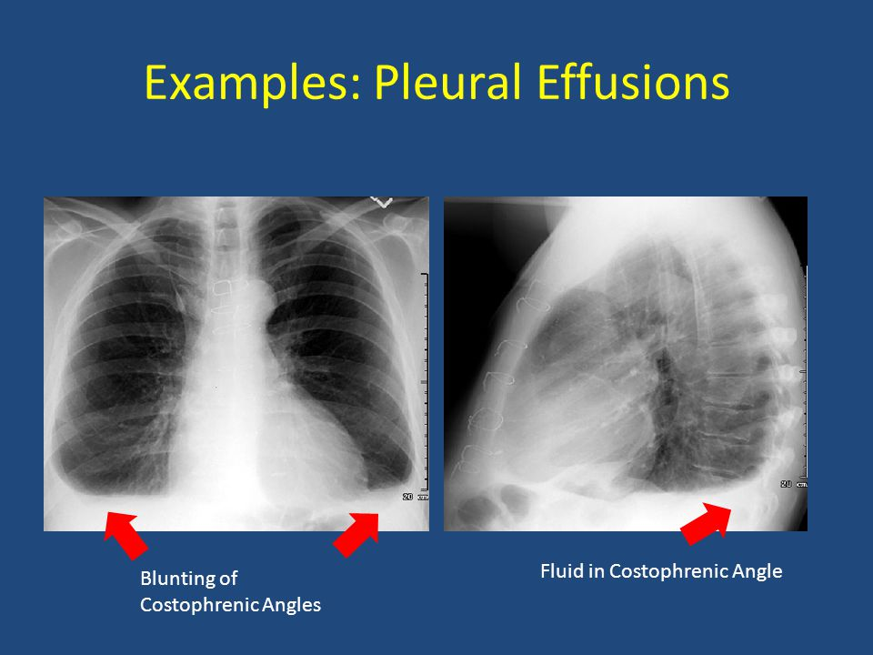 Examples: Pleural Effusions Blunting of Costophrenic Angles Fluid in Costophrenic Angle