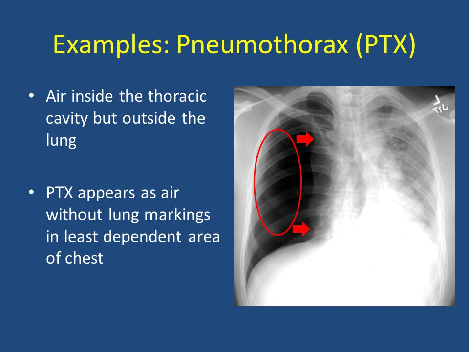 Examples: Pneumothorax (PTX) Air inside the thoracic cavity but outside the lung PTX appears as air without lung markings in least dependent area of c