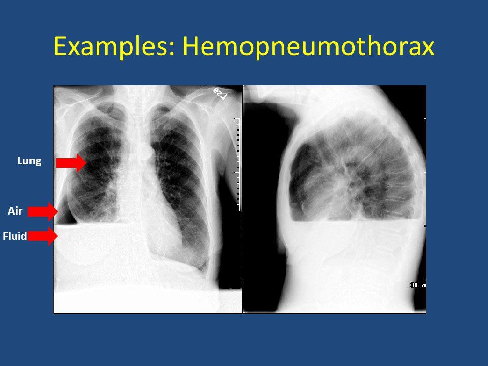 Examples: Hemopneumothorax Lung Air Fluid