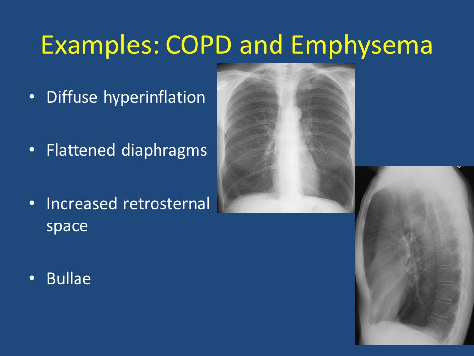 Examples: COPD and Emphysema Diffuse hyperinflation Flattened diaphragms Increased retrosternal space Bullae