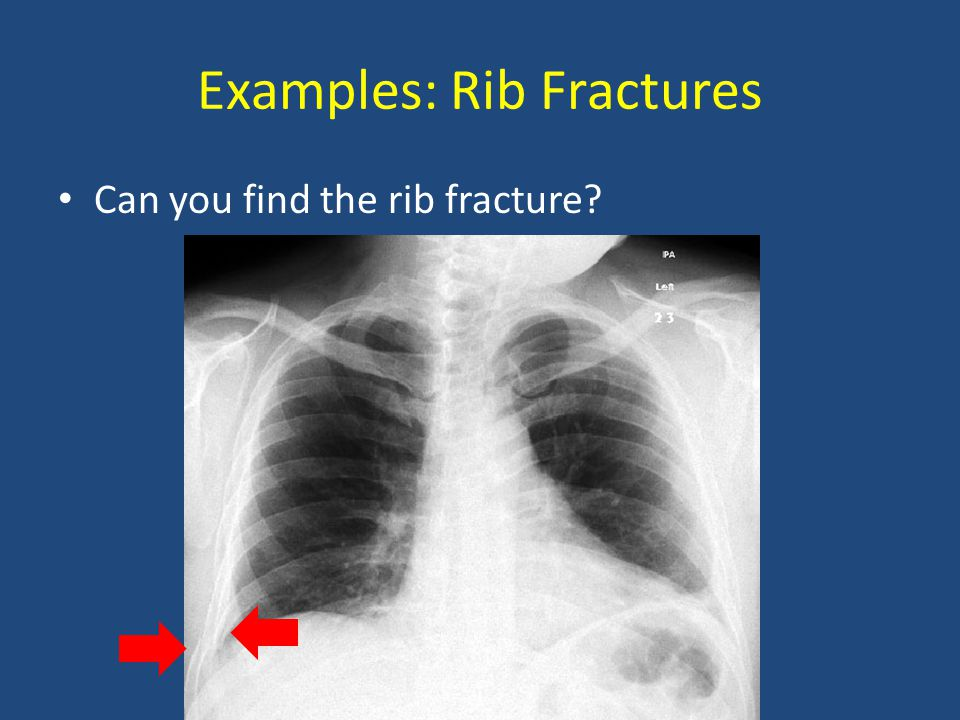 Examples: Rib Fractures Can you find the rib fracture?