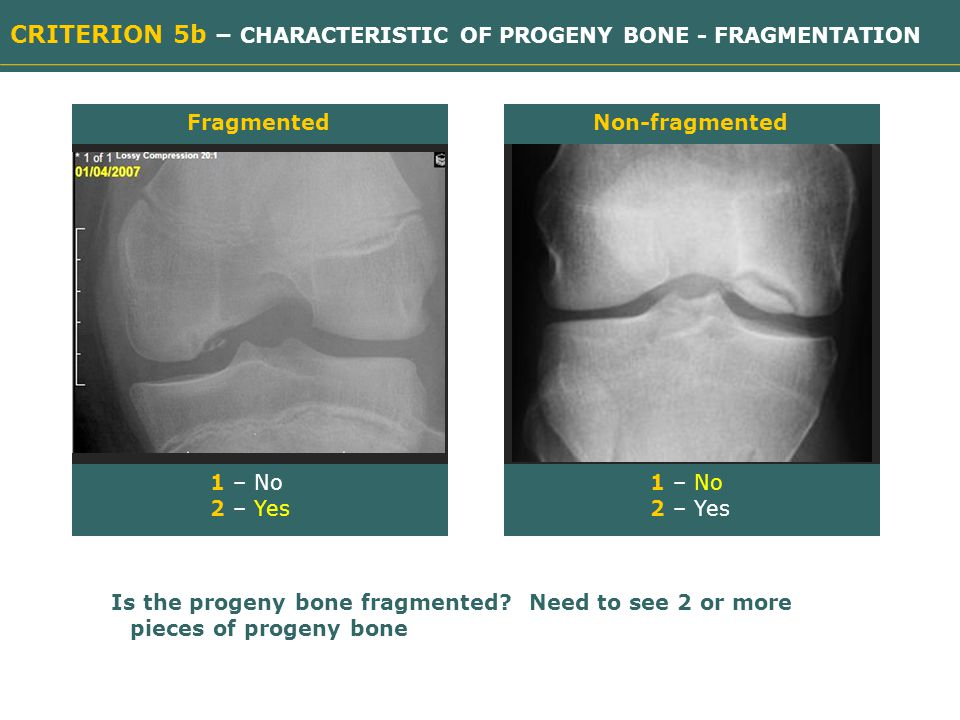 CRITERION 5b – CHARACTERISTIC OF PROGENY BONE - FRAGMENTATION 1 – No 2 – Yes Fragmented Need image Non-fragmented Need image 1 – No 2 – Yes Is the progeny bone fragmented.