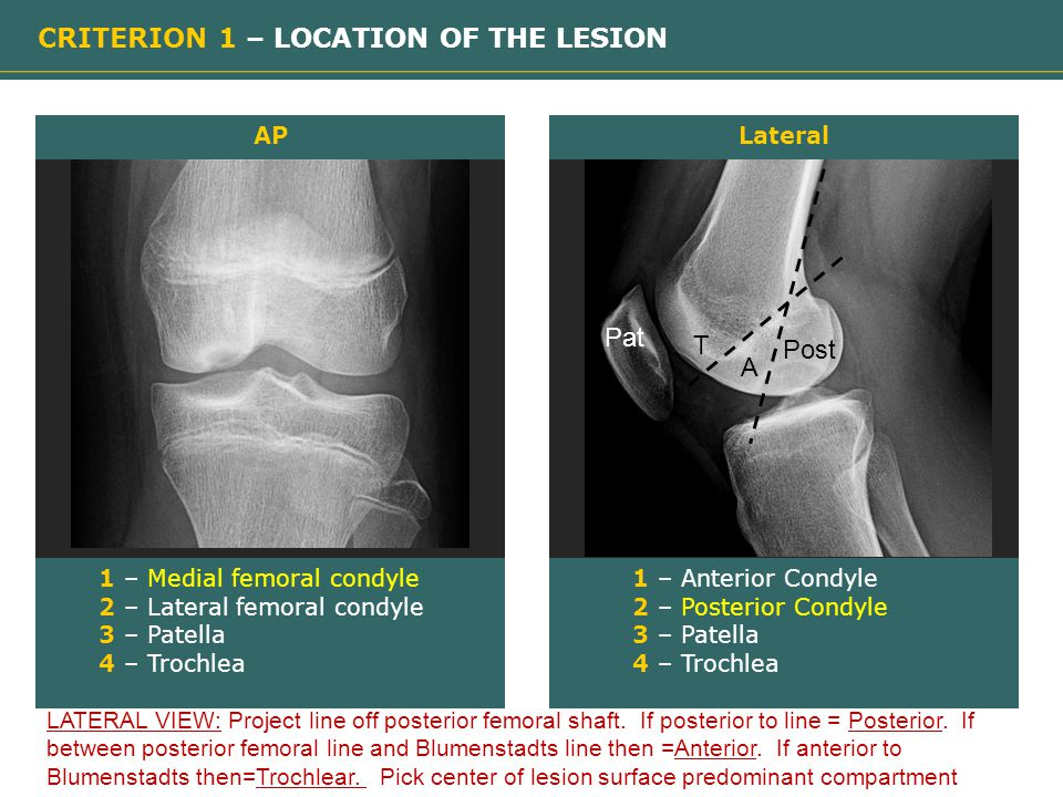 CRITERION 1 – LOCATION OF THE LESION 1 – Medial femoral condyle 2 – Lateral femoral condyle 3 – Patella 4 – Trochlea APLateral 1 – Anterior Condyle 2 – Posterior Condyle 3 – Patella 4 – Trochlea A Post T Pat LATERAL VIEW: Project line off posterior femoral shaft.