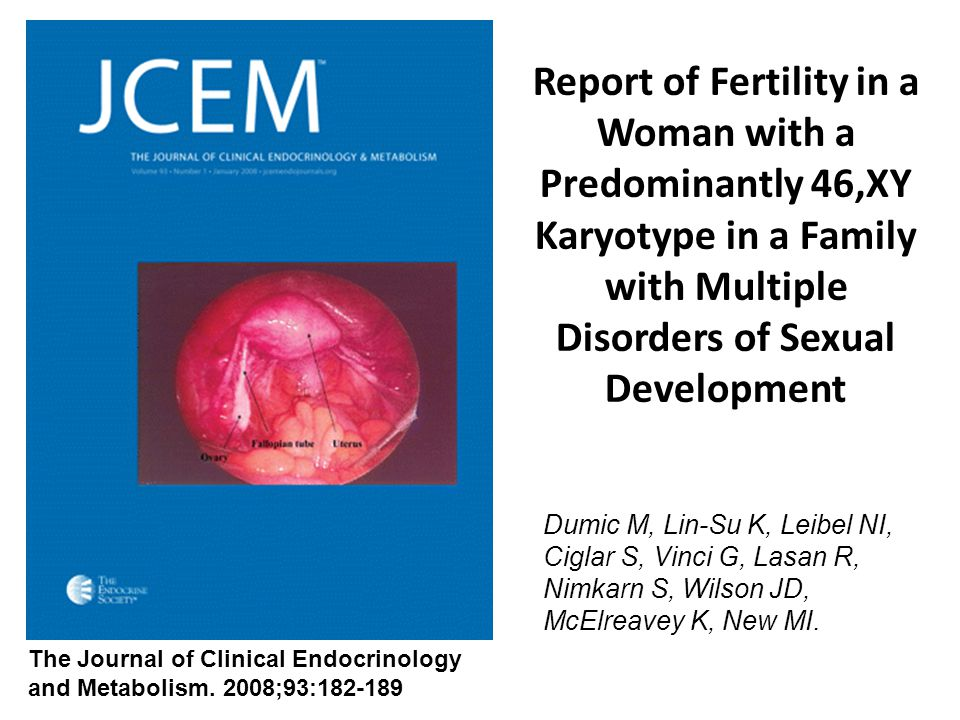 Report of Fertility in a Woman with a Predominantly 46,XY Karyotype in a Family with Multiple Disorders of Sexual Development Dumic M, Lin-Su K, Leibel NI, Ciglar S, Vinci G, Lasan R, Nimkarn S, Wilson JD, McElreavey K, New MI.