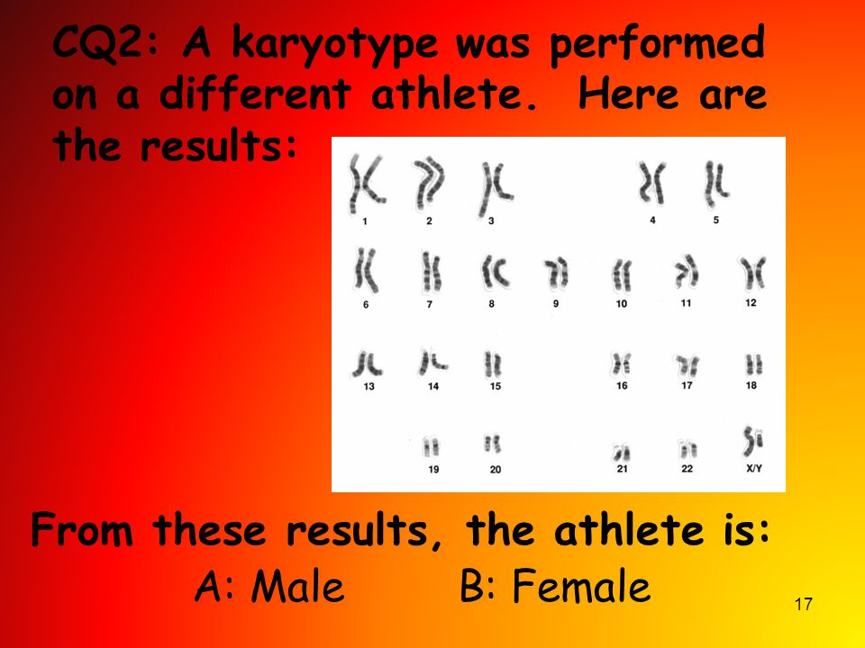 17 CQ2: A karyotype was performed on a different athlete. Here are the results: From these results, the athlete is: A: Male B: Female