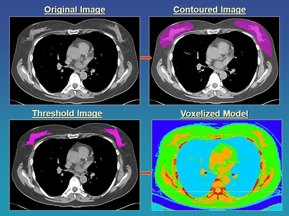 Threshold Image Contoured Image Voxelized Model