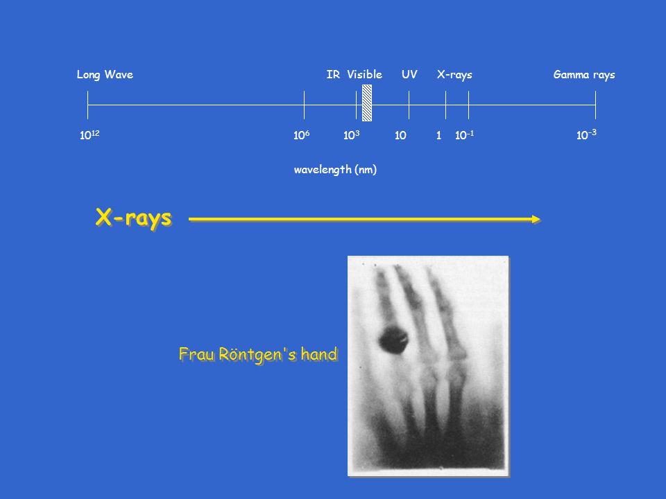 X-rays 10 12 10 6 10 3 10 1 10 -1 10 -3 Long Wave IR Visible UV X-rays Gamma rays wavelength (nm) Frau Röntgen's hand