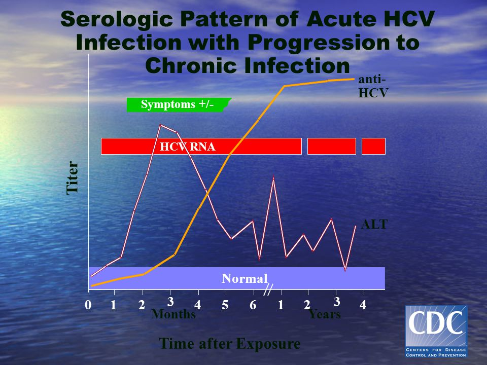 Serologic Pattern of Acute HCV Infection with Progression to Chronic Infection Symptoms +/- Time after Exposure Titer anti- HCV ALT Normal 012 3 45 61