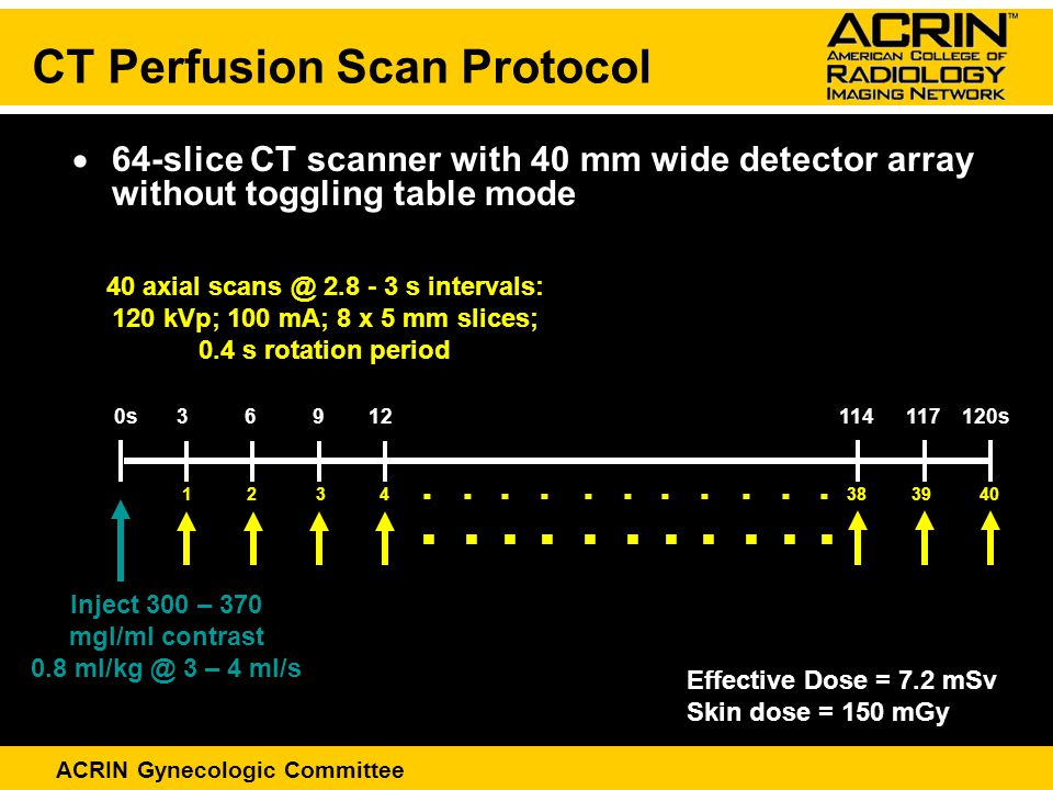 ACRIN Gynecologic Committee  64-slice CT scanner with 40 mm wide detector array without toggling table mode CT Perfusion Scan Protocol Inject 300 – 370 mgI/ml contrast 0.8 ml/kg @ 3 – 4 ml/s 40 axial scans @ 2.8 - 3 s intervals: 120 kVp; 100 mA; 8 x 5 mm slices; 0.4 s rotation period 0s 3 6 9 12 114 117 120s 1 2 3 4 38 39 40 Effective Dose = 7.2 mSv Skin dose = 150 mGy