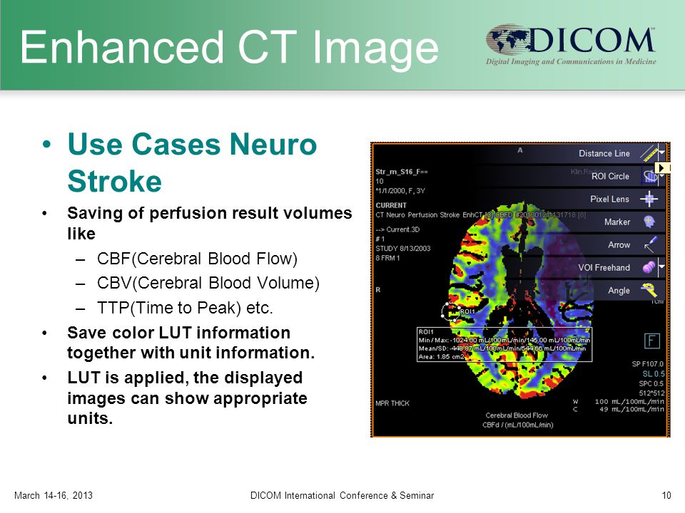 Enhanced CT Image Use Cases Neuro Stroke Saving of perfusion result volumes like –CBF(Cerebral Blood Flow) –CBV(Cerebral Blood Volume) –TTP(Time to Peak) etc.