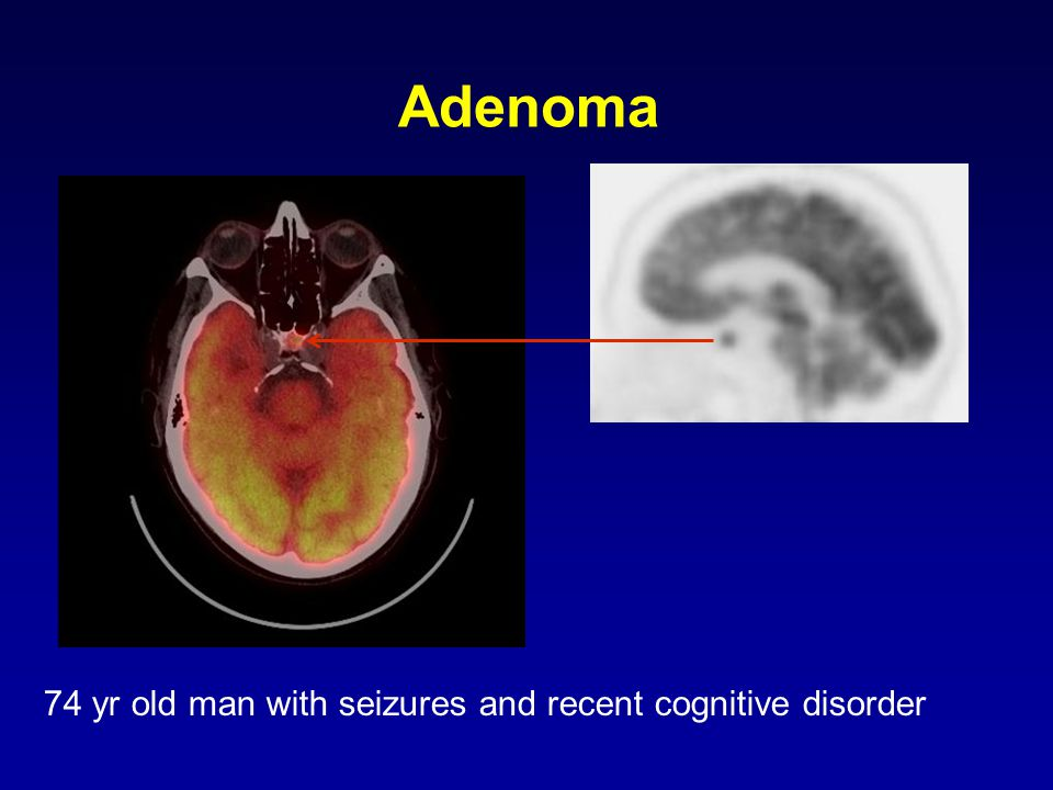 74 yr old man with seizures and recent cognitive disorder Adenoma
