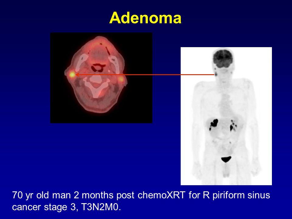 70 yr old man 2 months post chemoXRT for R piriform sinus cancer stage 3, T3N2M0. Adenoma