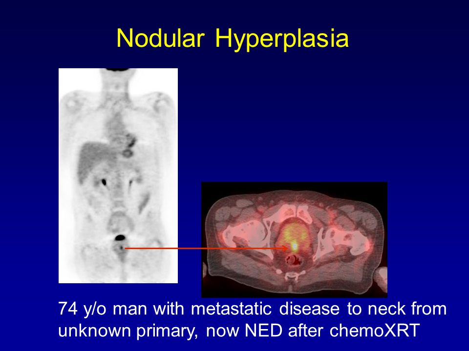Nodular Hyperplasia 74 y/o man with metastatic disease to neck from unknown primary, now NED after chemoXRT