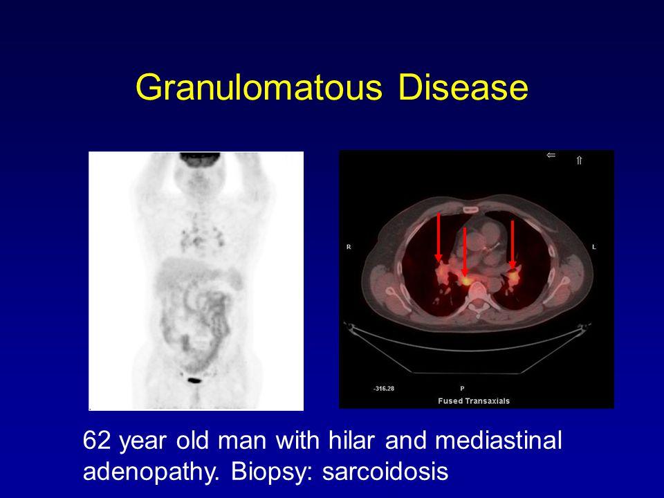 Granulomatous Disease 62 year old man with hilar and mediastinal adenopathy. Biopsy: sarcoidosis