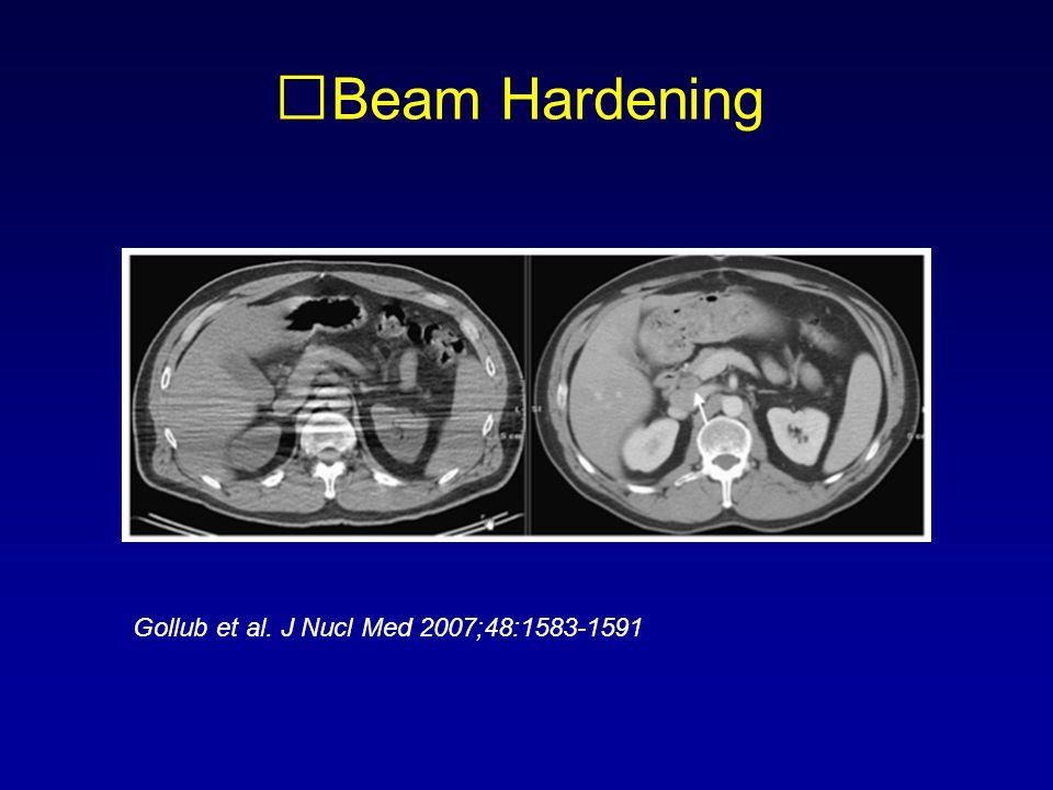 Beam Hardening Gollub et al. J Nucl Med 2007;48:1583-1591
