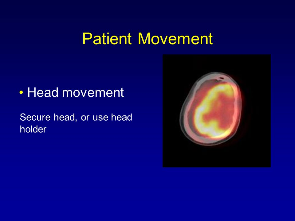 Head movement Secure head, or use head holder Patient Movement