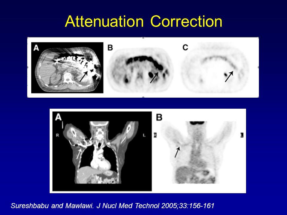 Attenuation Correction Sureshbabu and Mawlawi. J Nucl Med Technol 2005;33:156-161
