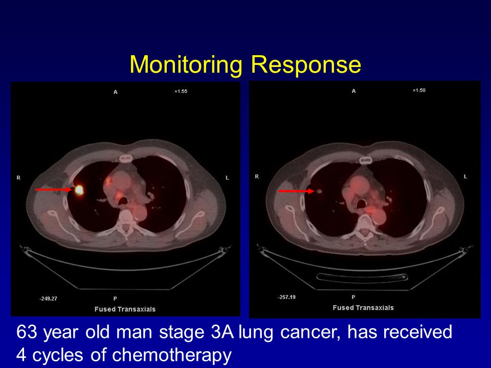 Monitoring Response 63 year old man stage 3A lung cancer, has received 4 cycles of chemotherapy