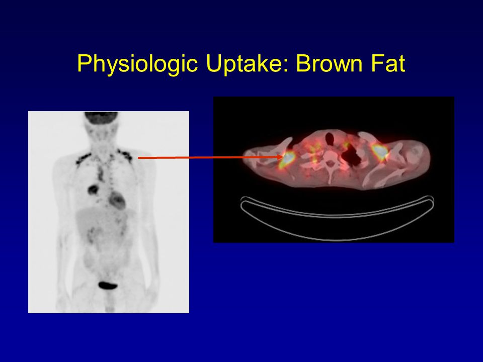 Physiologic Uptake: Brown Fat