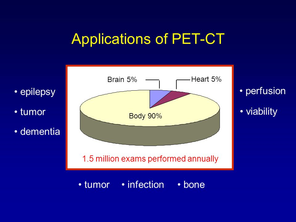Applications of PET-CT 76% Body 90% Brain 5% Heart 5% epilepsy tumor dementia perfusion viability tumor infection bone 1.5 million exams performed ann