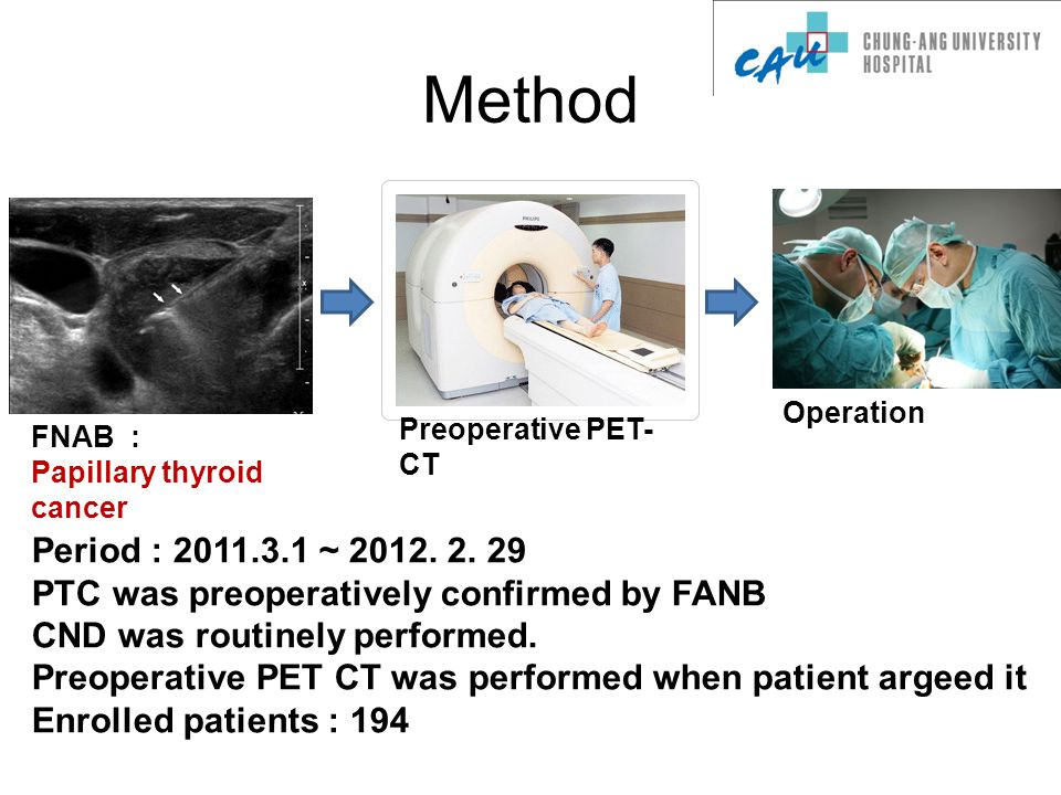 Method FNAB : Papillary thyroid cancer Preoperative PET- CT Operation Period : 2011.3.1 ~ 2012.