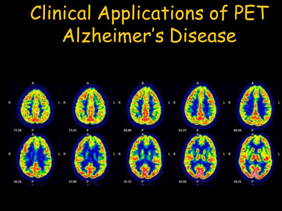 Clinical Applications of PET Alzheimer's Disease