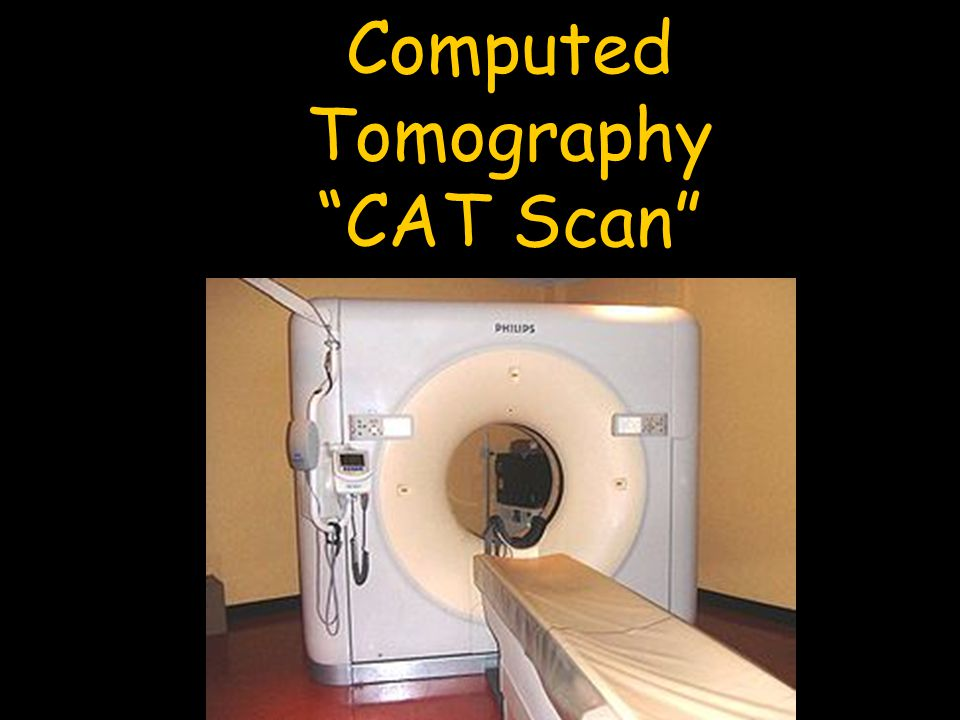 """Computed Tomography """"CAT Scan"""""""