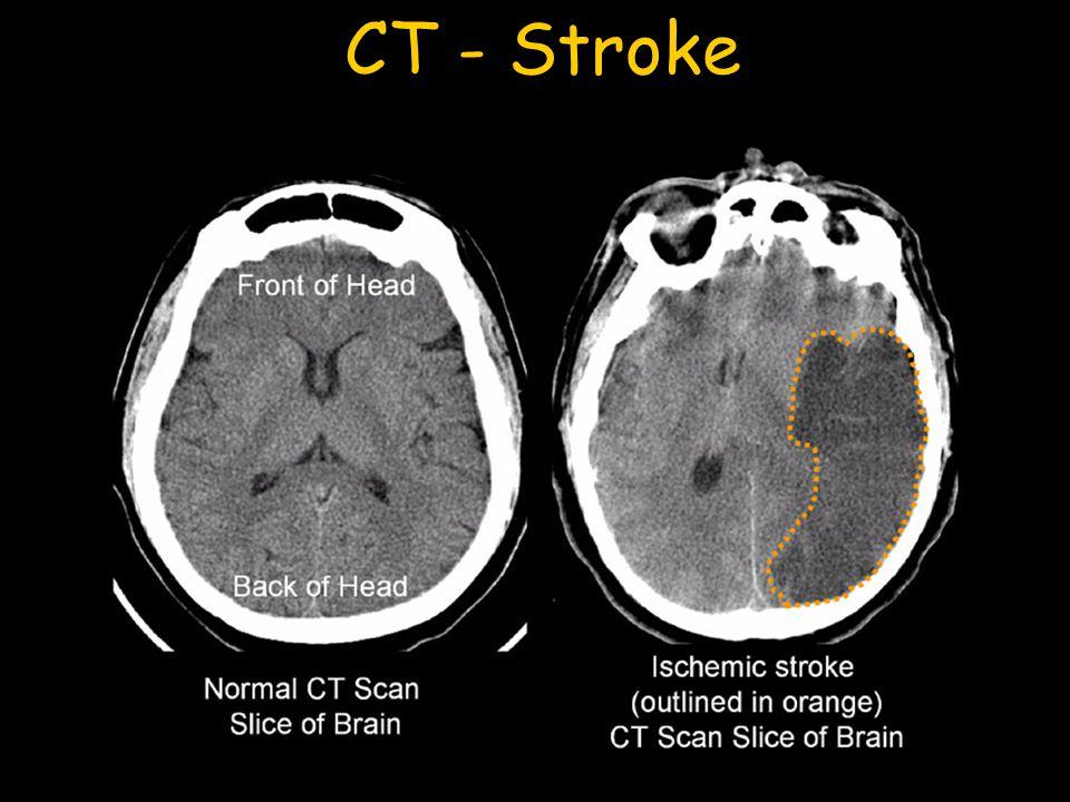 CT - Stroke
