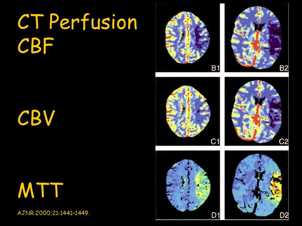 CT Perfusion CBF CBV MTT AJNR 2000;21:1441–1449.