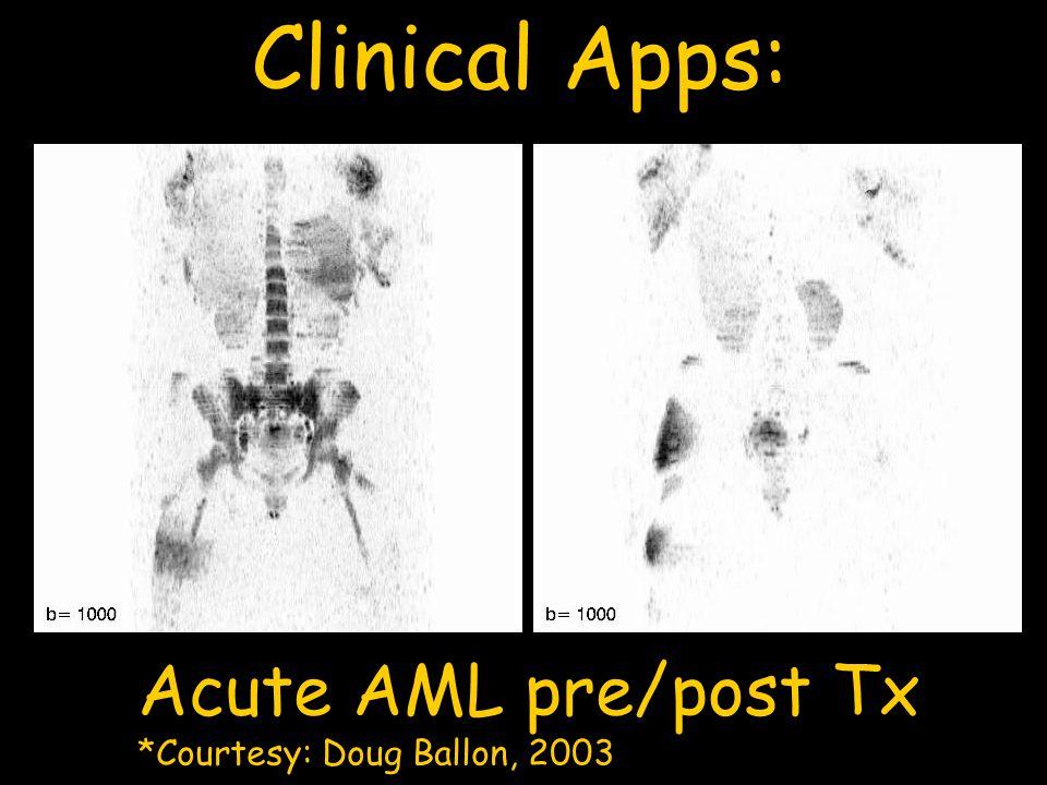 Clinical Apps: Acute AML pre/post Tx *Courtesy: Doug Ballon, 2003