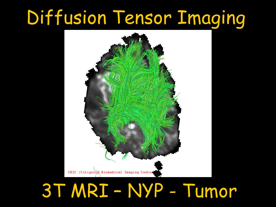 Diffusion Tensor Imaging 3T MRI – NYP - Tumor