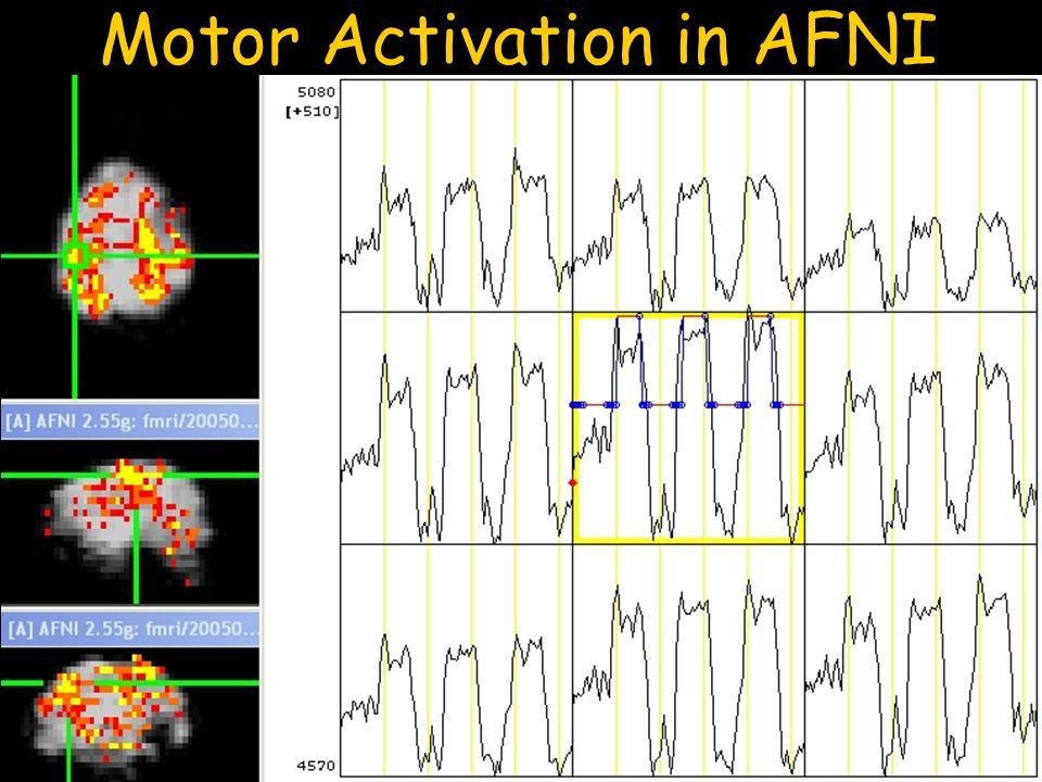 Motor Activation in AFNI