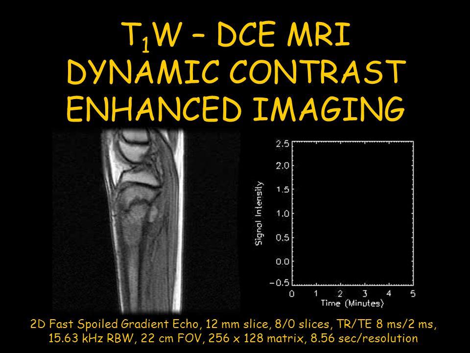 T 1 W – DCE MRI DYNAMIC CONTRAST ENHANCED IMAGING 2D Fast Spoiled Gradient Echo, 12 mm slice, 8/0 slices, TR/TE 8 ms/2 ms, 15.63 kHz RBW, 22 cm FOV, 2