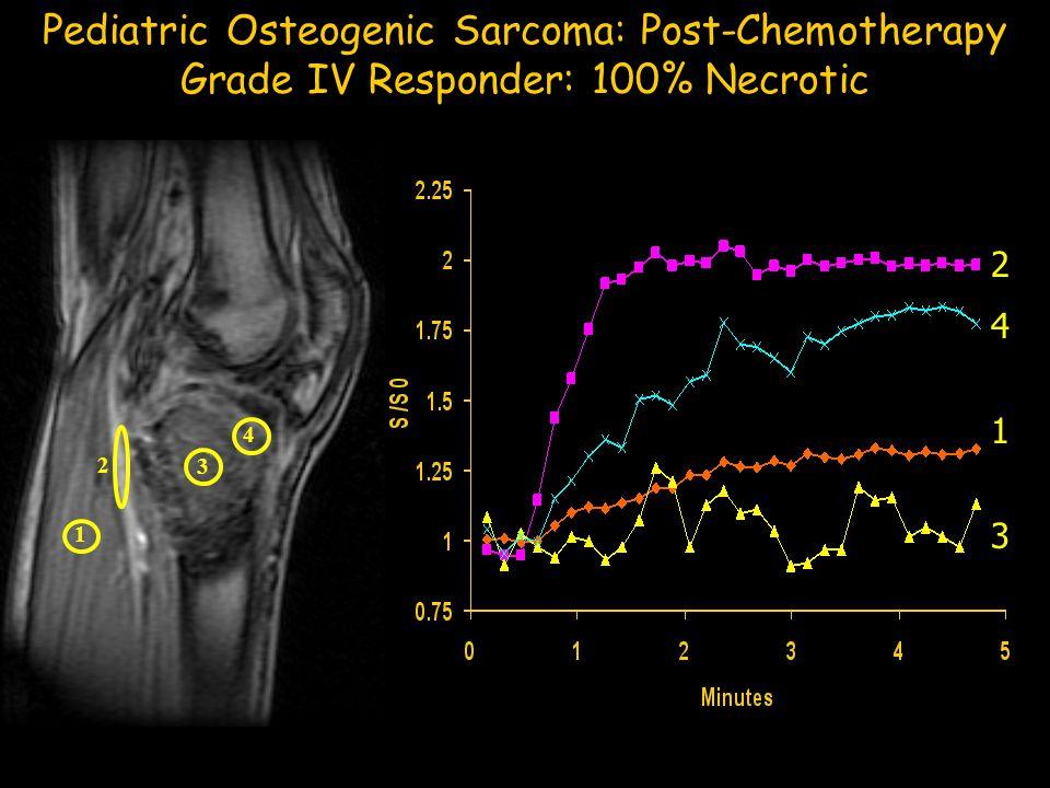 1 2 3 4 Pediatric Osteogenic Sarcoma: Post-Chemotherapy Grade IV Responder: 100% Necrotic 1 4 3 2