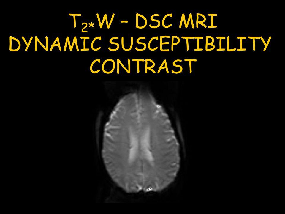 T 2* W – DSC MRI DYNAMIC SUSCEPTIBILITY CONTRAST