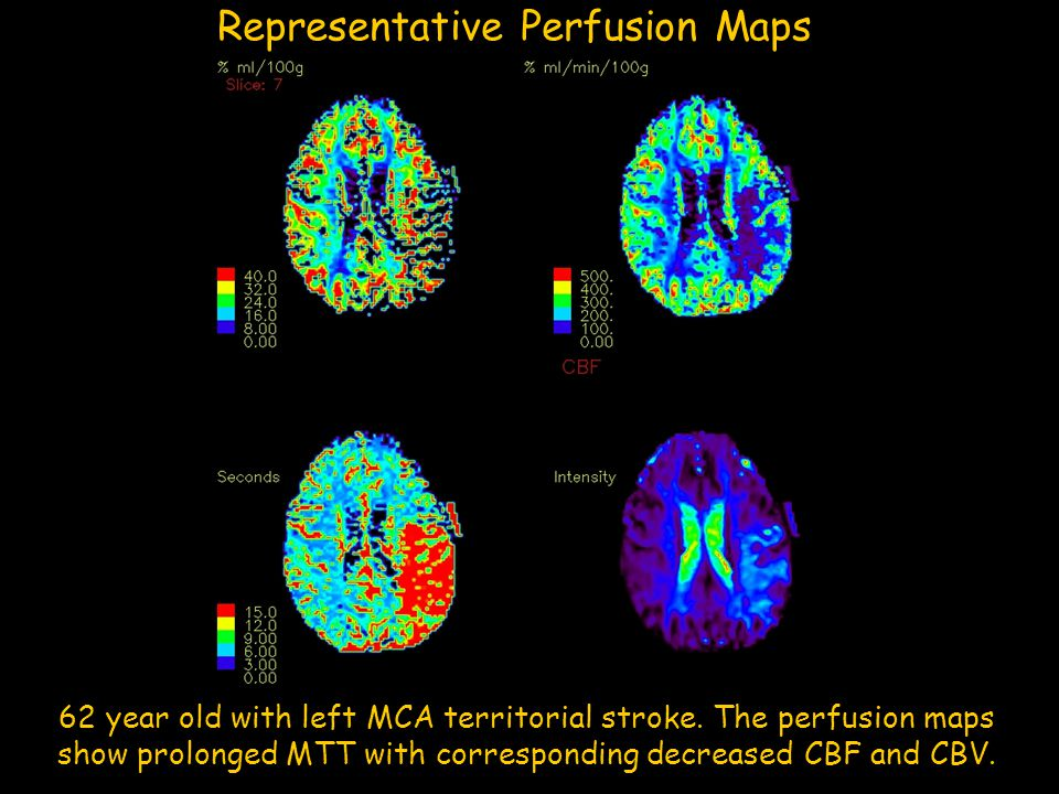 Representative Perfusion Maps MTT EPI CBF CBV 62 year old with left MCA territorial stroke. The perfusion maps show prolonged MTT with corresponding d