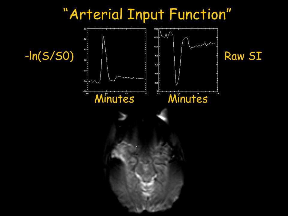 """""""Arterial Input Function"""" Raw SI-ln(S/S0) Minutes"""