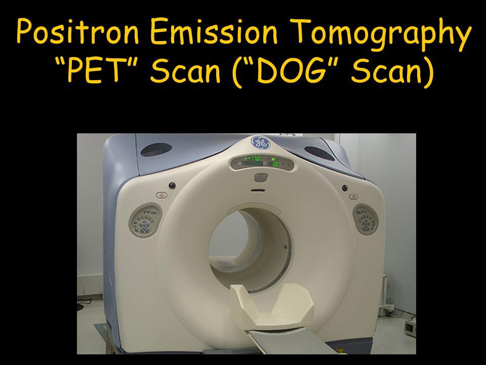 """Positron Emission Tomography """"PET"""" Scan (""""DOG"""" Scan)"""