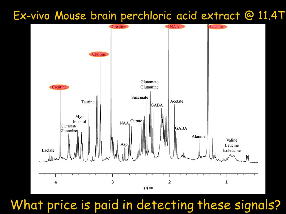 Ex-vivo Mouse brain perchloric acid extract @ 11.4T What price is paid in detecting these signals?