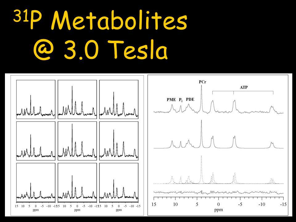 31 P Metabolites @ 3.0 Tesla