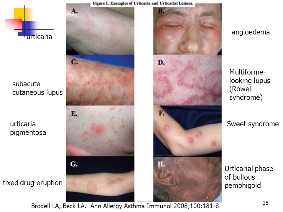 urticaria subacute cutaneous lupus urticaria pigmentosa fixed drug eruption angioedema Multiforme- looking lupus (Rowell syndrome) Sweet syndrome Urti