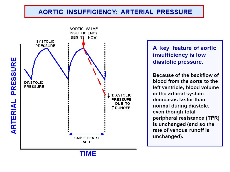 Aortic regurgitation 2 There can also be a systolic murmur due to large stroke volume and turbulent flow During ejection EDM – early diastolic murmur