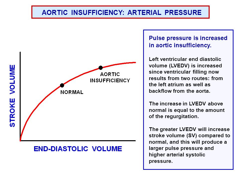 AORTIC INSUFFICIENCY: ARTERIAL PRESSURE A key feature of aortic insufficiency is low diastolic pressure. Because of the backflow of blood from the aor