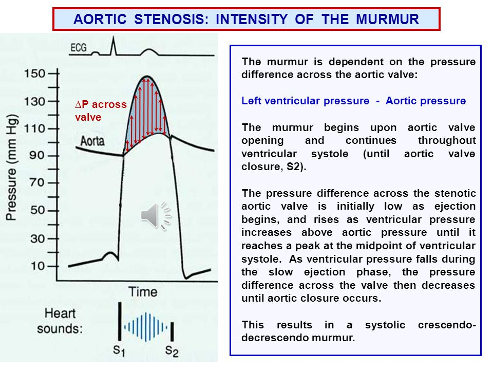 AORTIC STENOSIS The aortic valve leaflets do not open completely (stiff valve), which reduces the size of the opening through which blood is ejected (